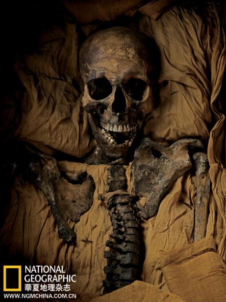 古埃及法老王他-2005年,对图坦卡蒙国王的木乃伊进行CT扫描后,我们得以证明,他图片