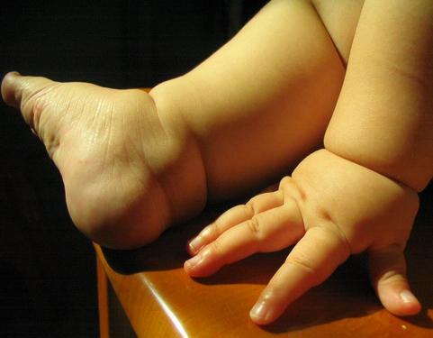 顾名思义,就是用与手指结构相似的脚趾替代缺失的手指,以达到重建手指