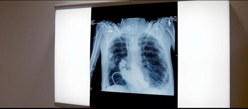 美国男子成首名无心人:离心泵取代心脏无脉搏 - 异样的蓝天 - 异样的蓝天