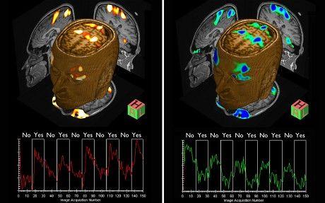 阿德里安·欧文教授利用脑部扫描技术发现患者隐藏的意识,并使他们能够进行交流
