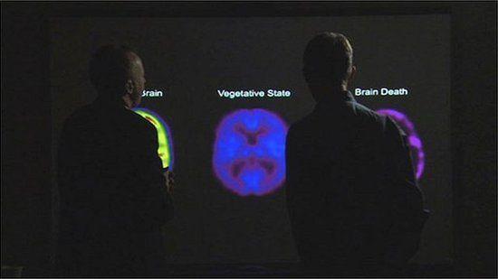 BBC全景栏目的费格斯·沃尔什(Fergus Walsh)正在向欧文教授了解植物人的大脑活动状态